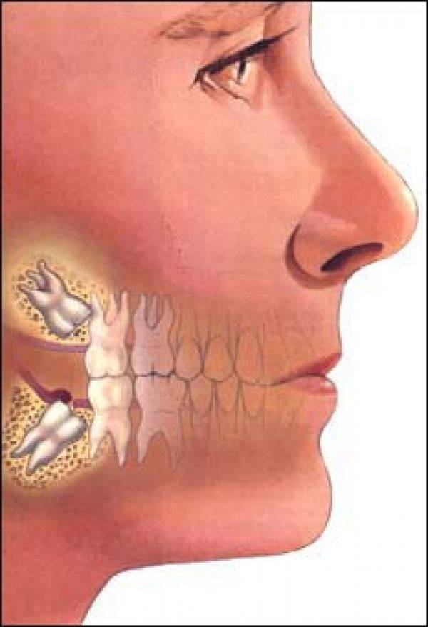 Может ли от зуба болеть голова и как избавиться от этой проблемы