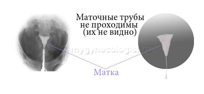 Проходимость маточных труб: как называется процедура, современные методы обследования