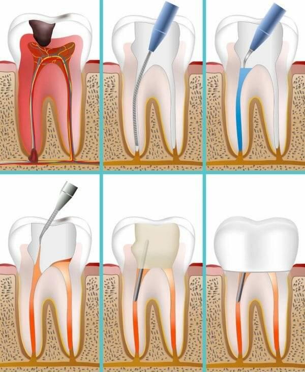 Что делать, если болит зуб под коронкой, хотя нерв удален? основные причины дискомфорта