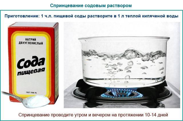 Как проводится спринцевание содой при молочнице
