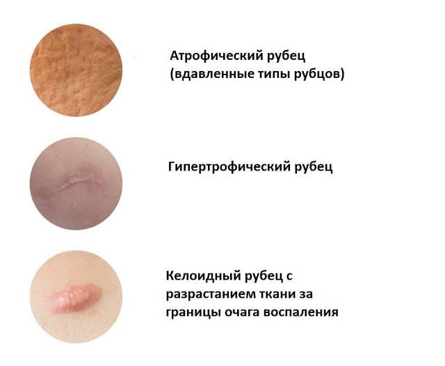 Виды рубцов на лице и лучшие методы их удаления