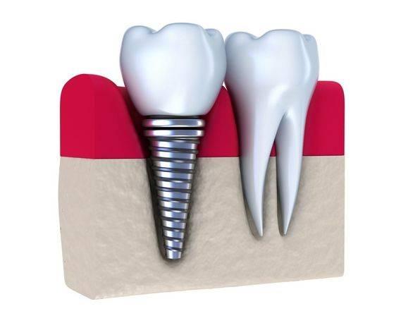 Как долго служат зубные импланты, нужно ли их снимать по истечении срока годности и что делать потом?