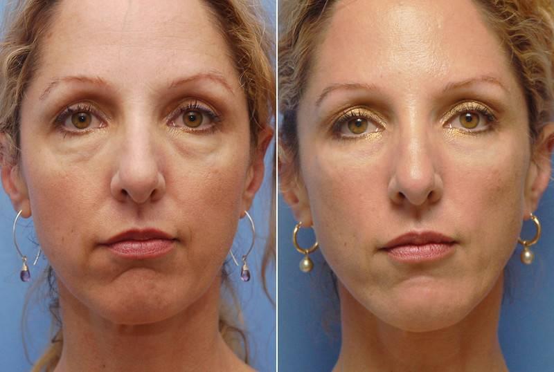 Грыжи под глазами: лечение и профилактика, удаление