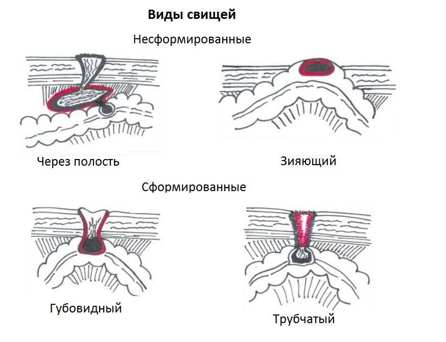 Из дырки в зубе вылезла десна: что делать, как лечить