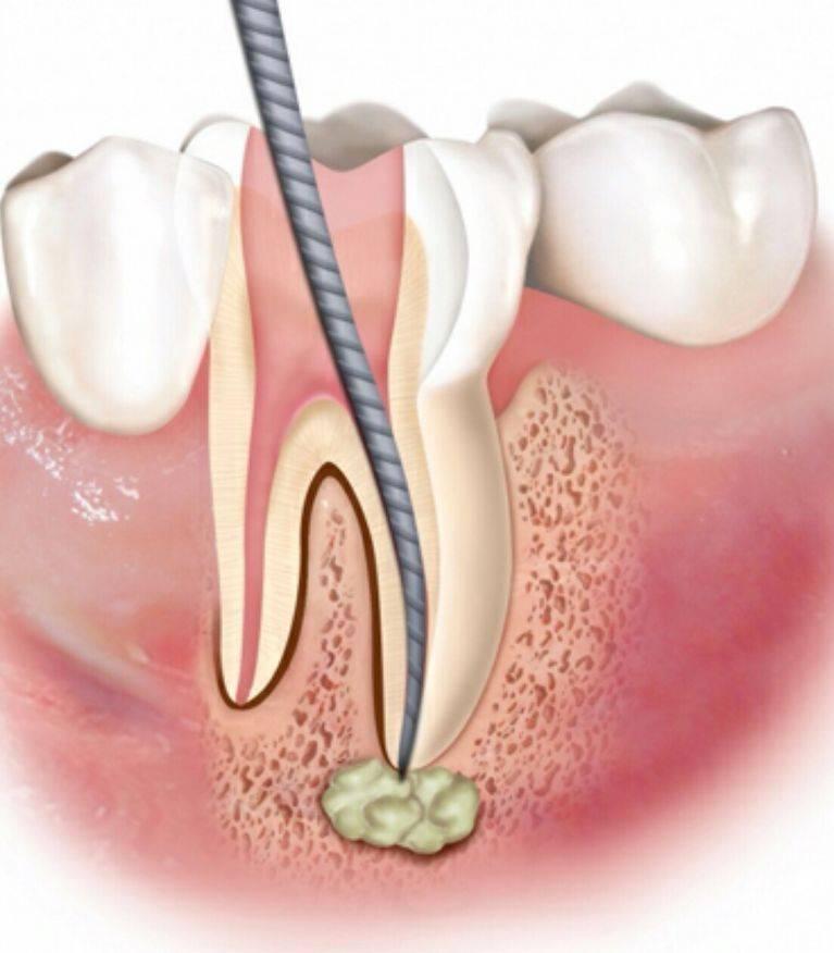 Лазерное лечение зубов — описание процедуры, показания и противопоказания