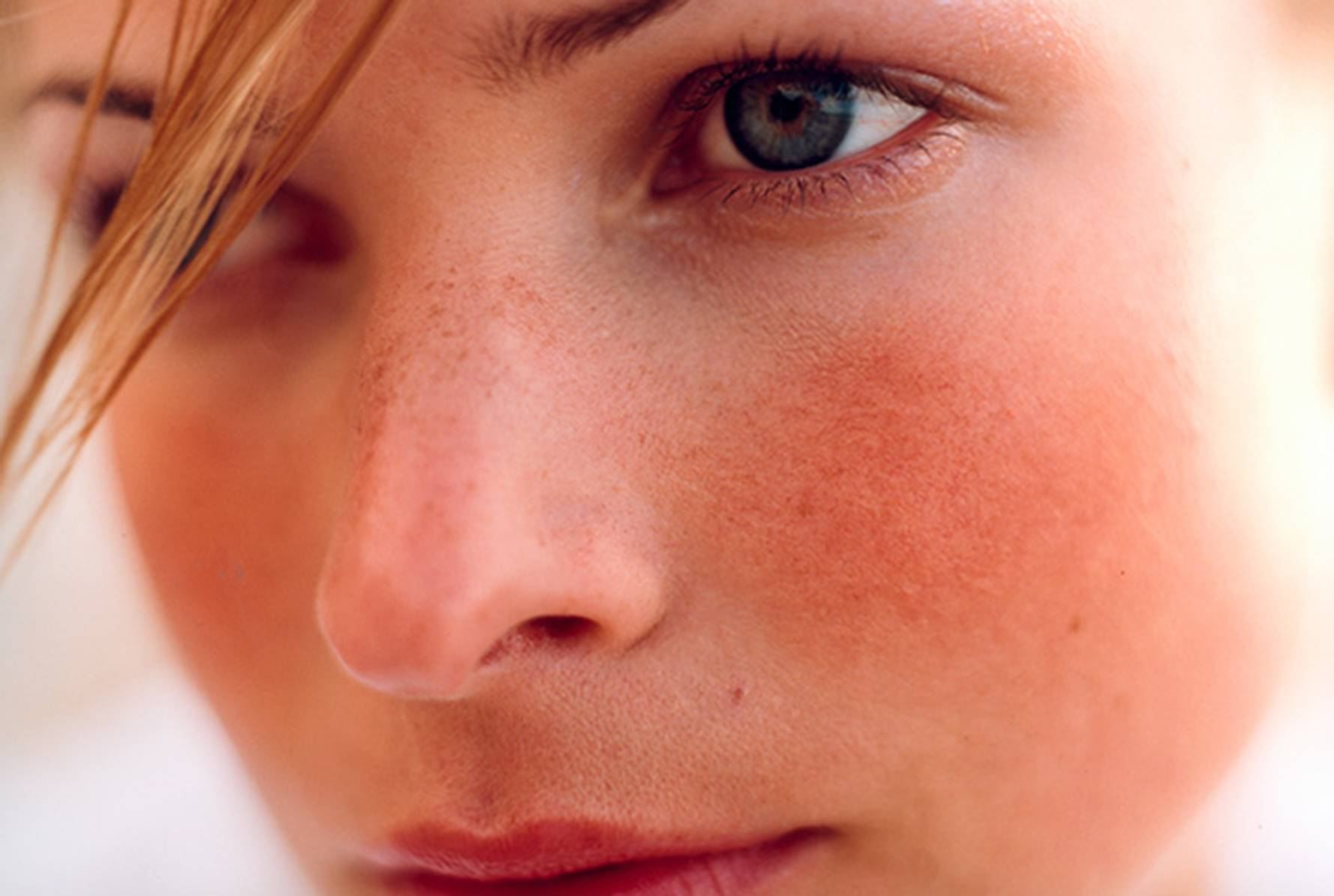 Все оттенки серого: от чего портится цвет лица