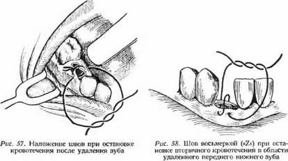 Через сколько дней после удаления зуба мудрости снимают швы и больно ли это, как долго распадаются рассасывающиеся нити?