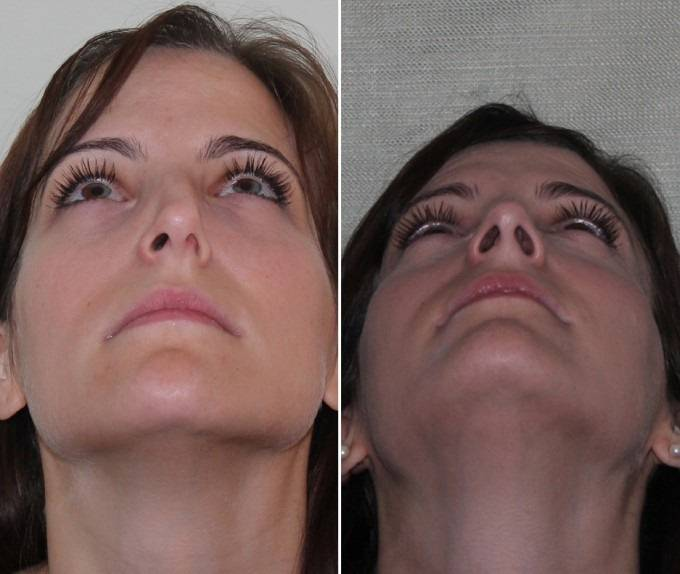 Кривая перегородка носа: симптомы, причины, последствия