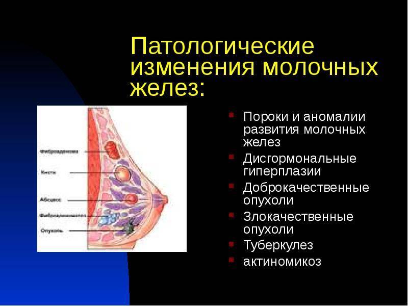 Признаки инволютивных изменений молочных желез