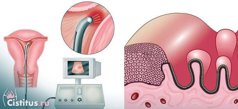 Гипоплазия эндометрия выкидыш