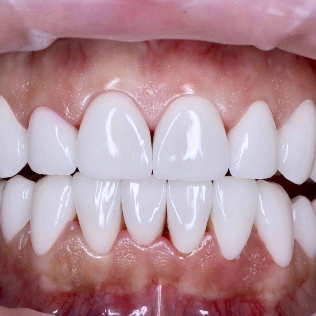 Композитные виниры: как восстановить зубной ряд