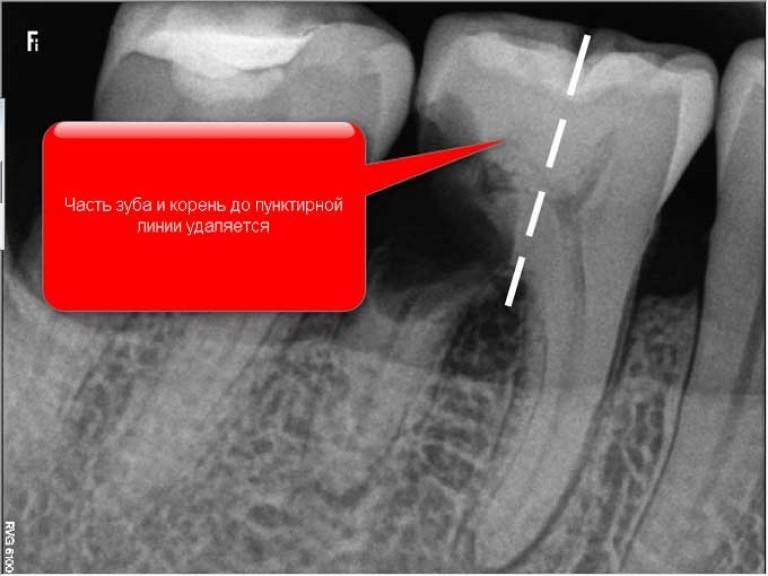 Как и когда удаляют корень зуба: показания и особенности проведения операции