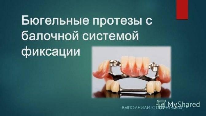 Обзор зубных протезов нового поколения без неба: съемное, частичное и полное протезирование