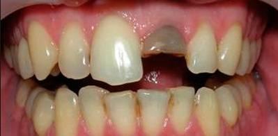 Вывих зуба: причины, симптомы, лечение, фото