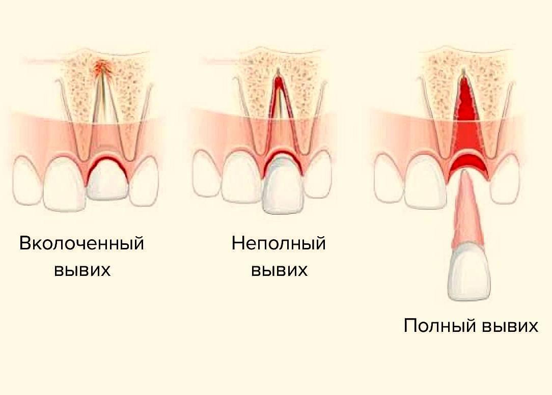 Вывих челюсти: симптомы, причины, профилактика и лечение с фото и видео