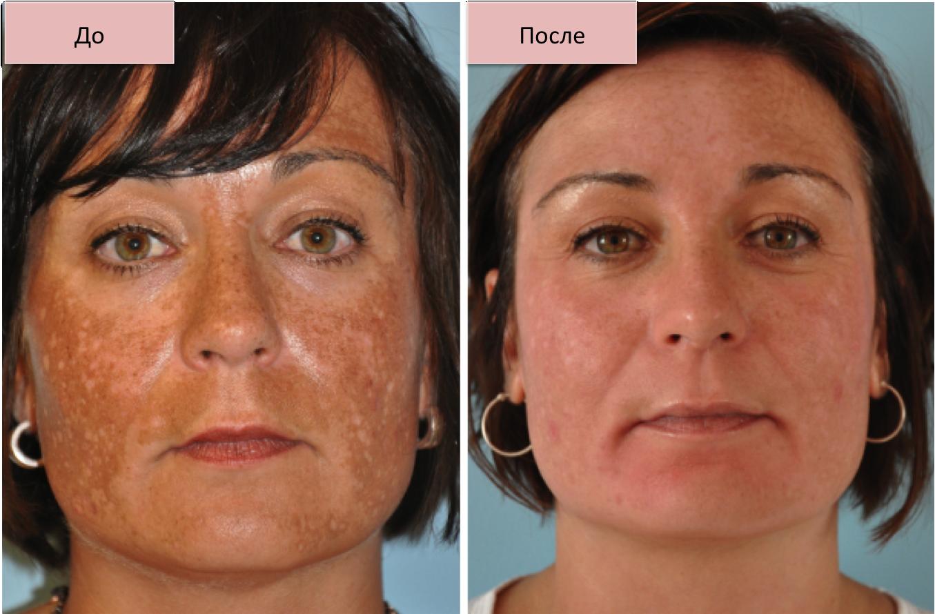 Фракционная мезотерапия — эффективный метод аппаратной косметологии