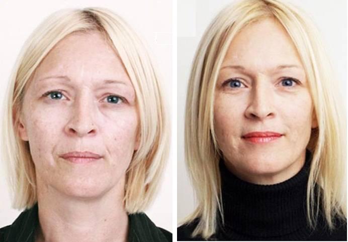 Самые лучшие косметические процедуры после 40