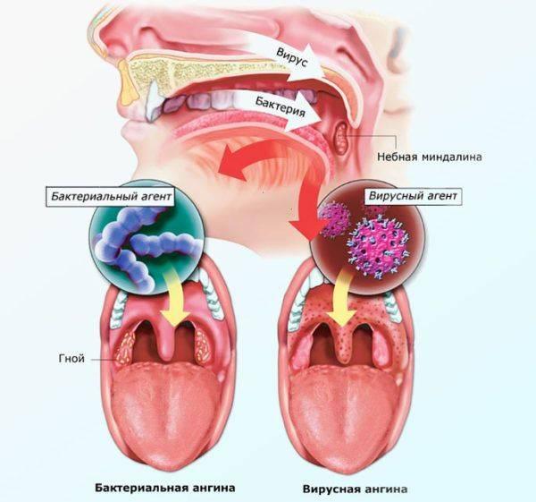 Зубы болят при ангине