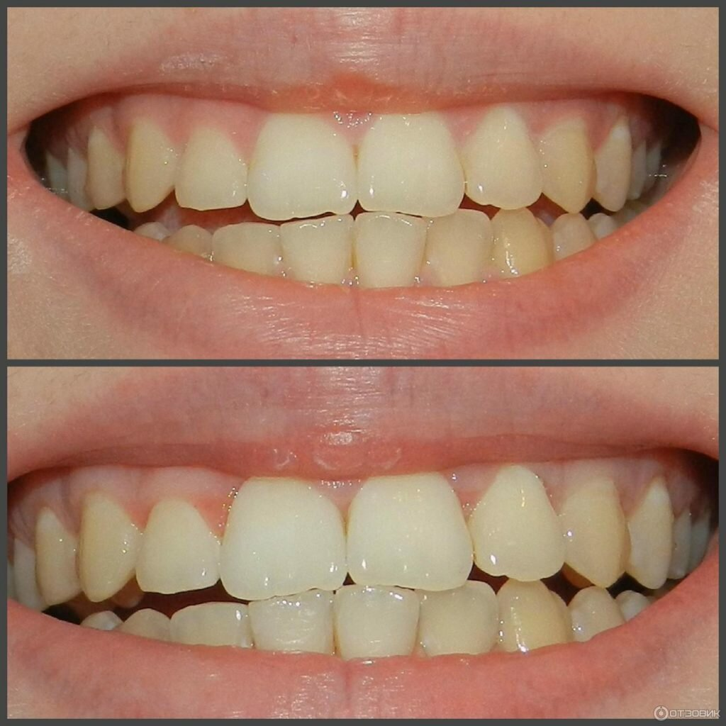 Можно ли отбелить желтые от природы зубы