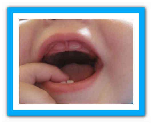 Жевательные зубы у детей: особенности прорезывания молочных и постоянных коренных зубов