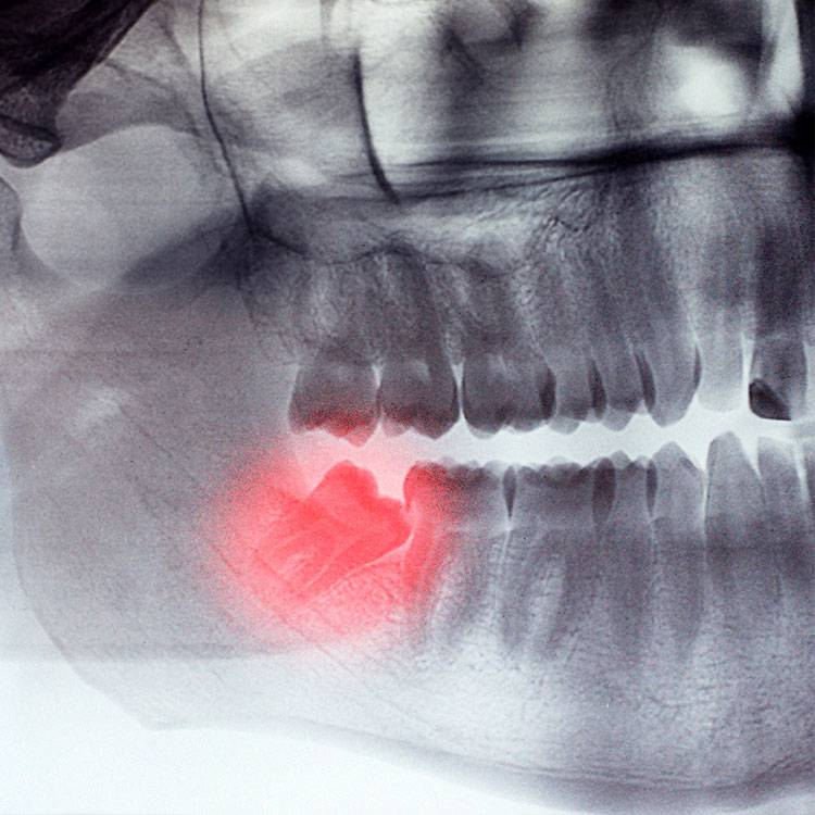 Сильная ли боль при удалении зубов мудрости? какие последствия могут быть?