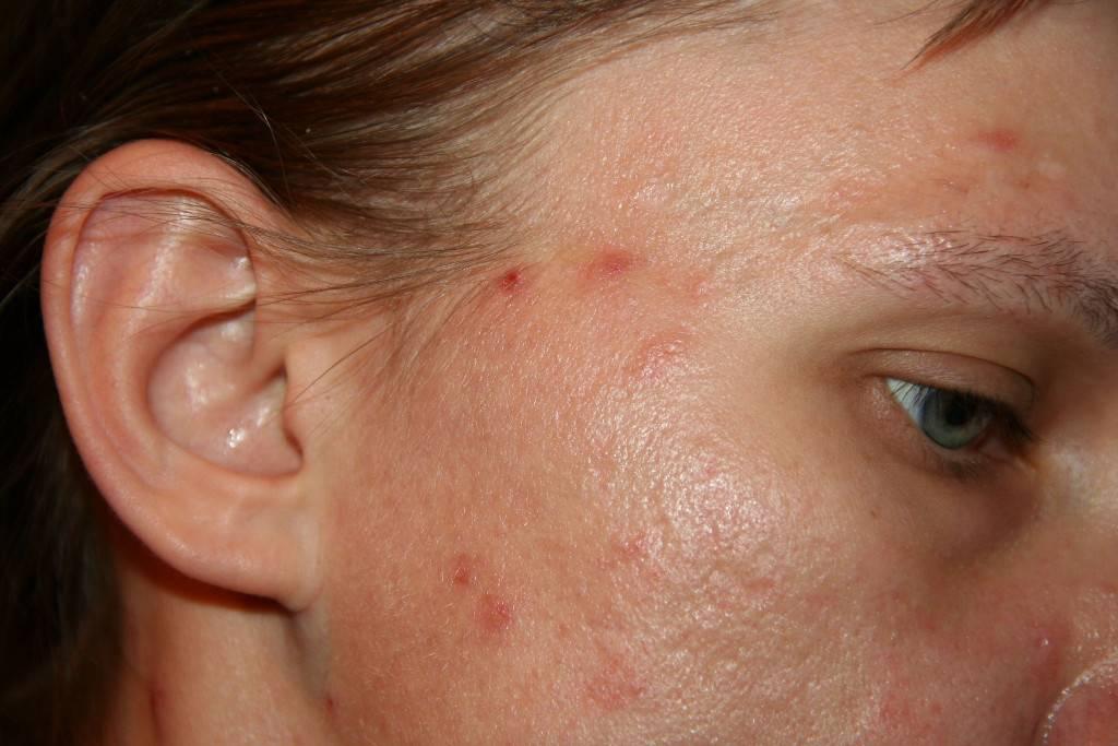 От чего появляются красные пятна на лице