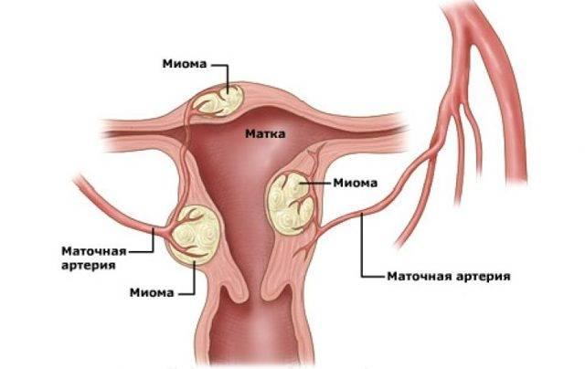 Миома матки: причины и последствия заболевания. лечение миомы матки народными методами: 8 лучших народных рецептов