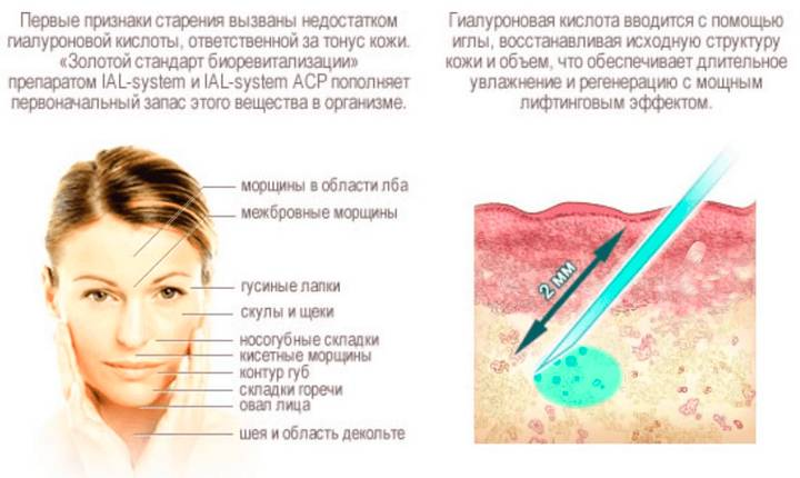 Техника биоревитализации кистей