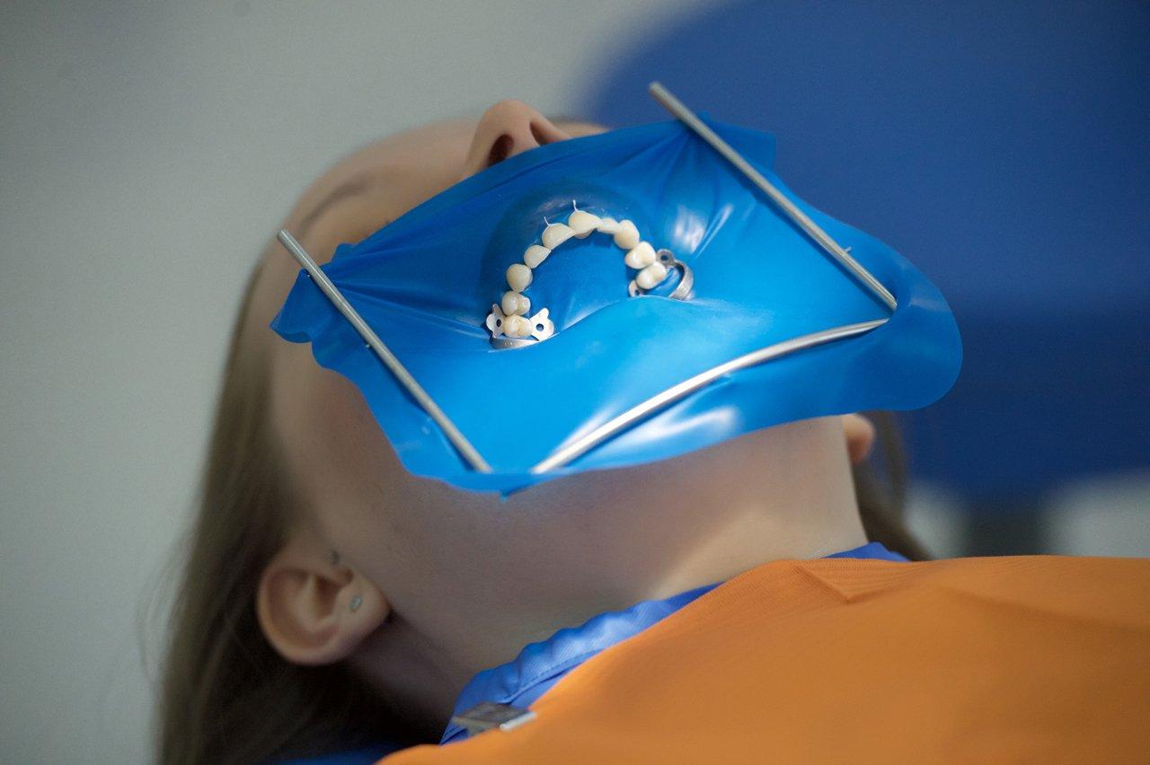 Коффердам в стоматологии: роббердам, что это и наложение