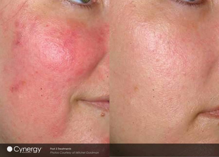 Применение масла для лечения купероза на коже лица