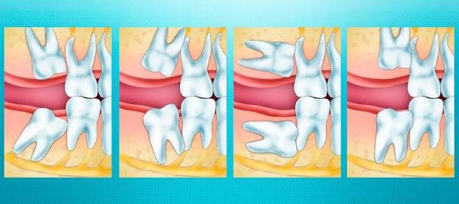 Рекомендации после удаления зуба мудрости: когда можно есть и пить, особенности ухода