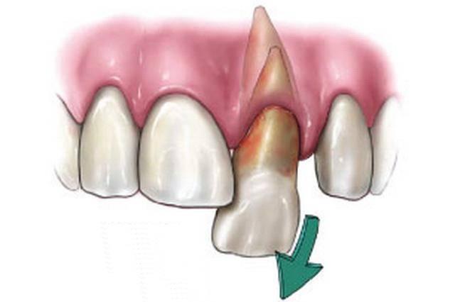 Что делать, если выдвинулся зуб? об ортодонтическом перемещении отдельных зубов…