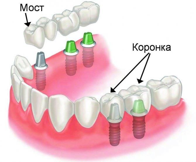 Протезирование зубов: современные технологии, методы и этапы