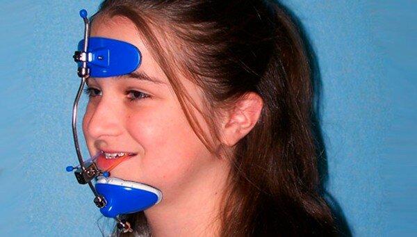 Лицевая дуга в стоматологии: особенности и применение