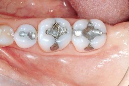 Пломбирование зубов в москве, цены, отзывы