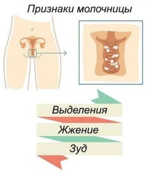 Лечение кандидоза у женщин — причины и симптомы заболевания