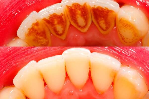 Черный налет на зубах у детей. лечение народными способами. как предотвратить зубной налет у ребенка