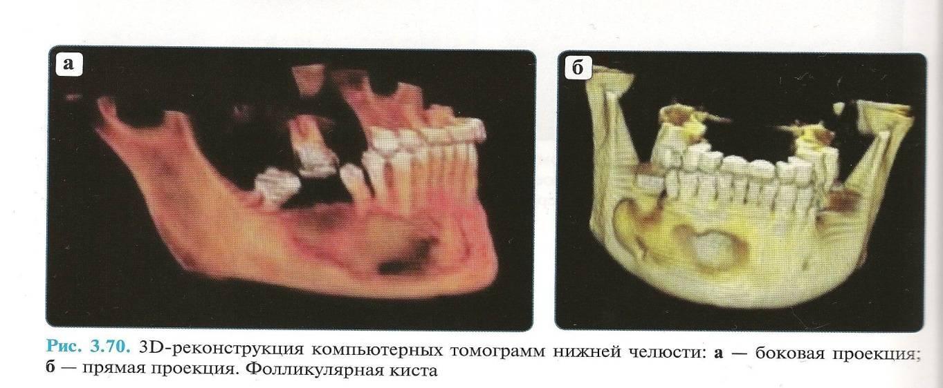Лечение кисты челюсти без операции
