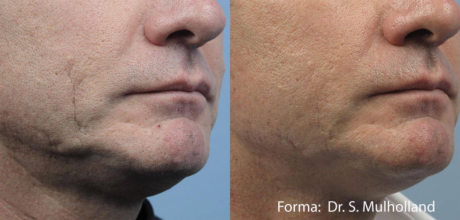 Варианты удаления шрамов на лице