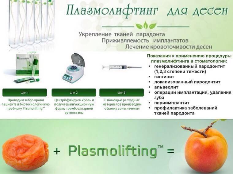 Плазмолифтинг в стоматологии: методика, порядок применения, противопоказания, отзывы врачей