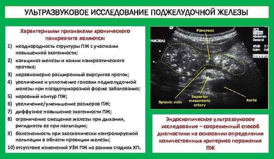 Диффузно неоднородная структура поджелудочной железы