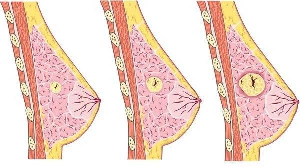 Симптомы, диагностика и лечение фиброзно-кистозной мастопатии