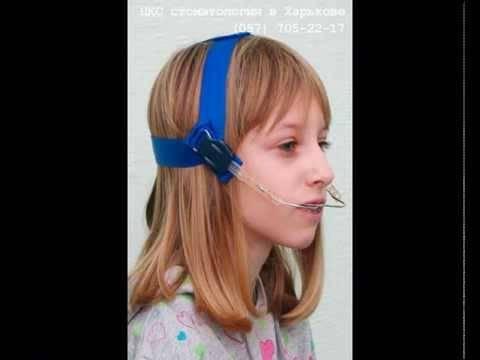 Лицевая дуга: ортодонтия, показания, для чего используется, лицевая дуга для исправления прикуса