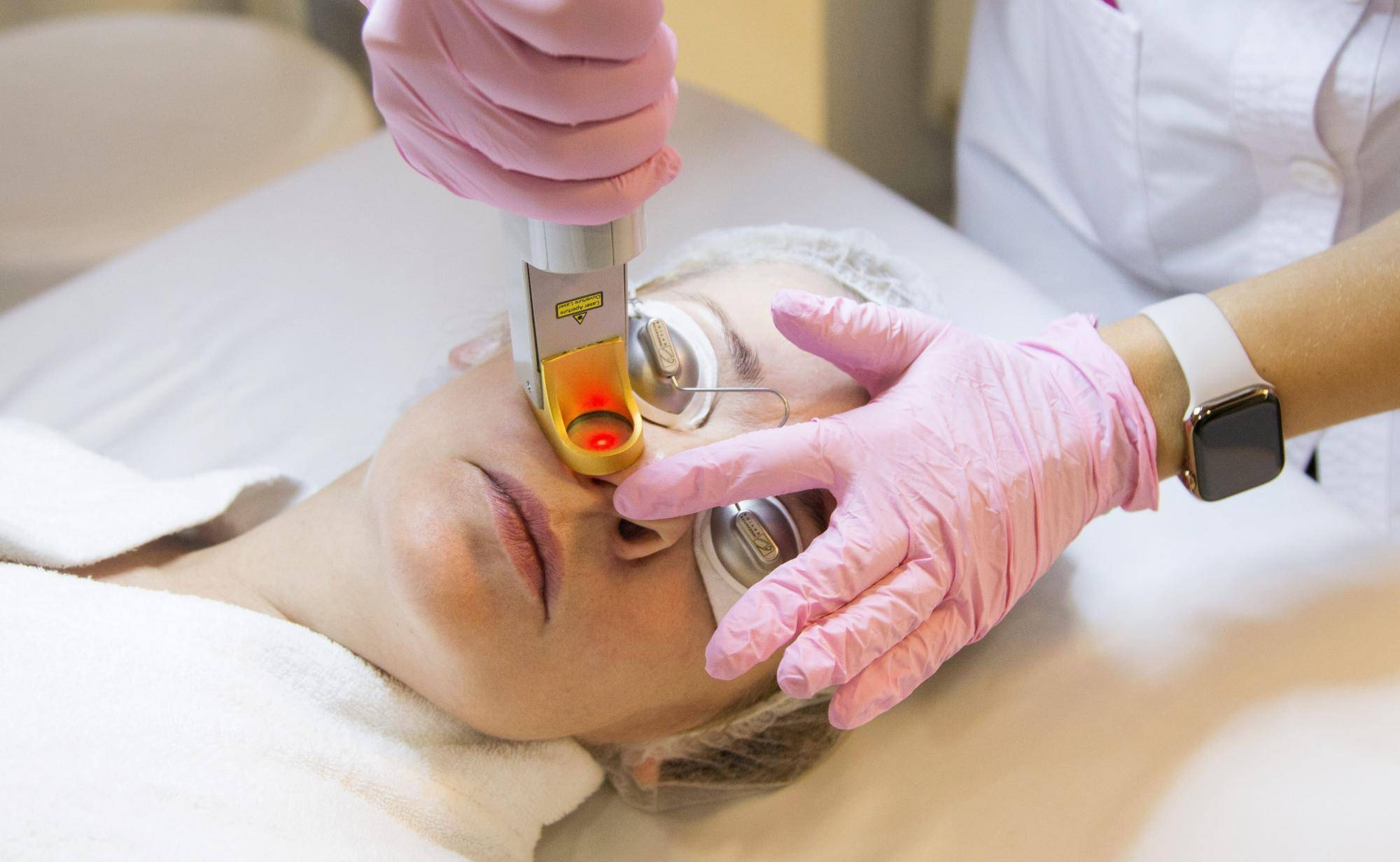 Удаление купероза на лице аппаратом м22