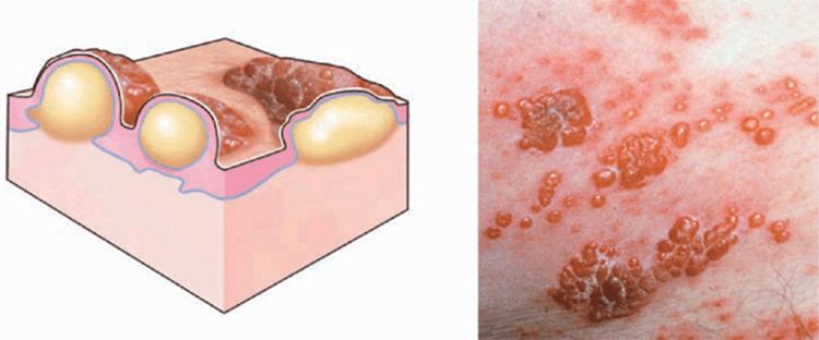 Народные средства пузырчатый дерматит