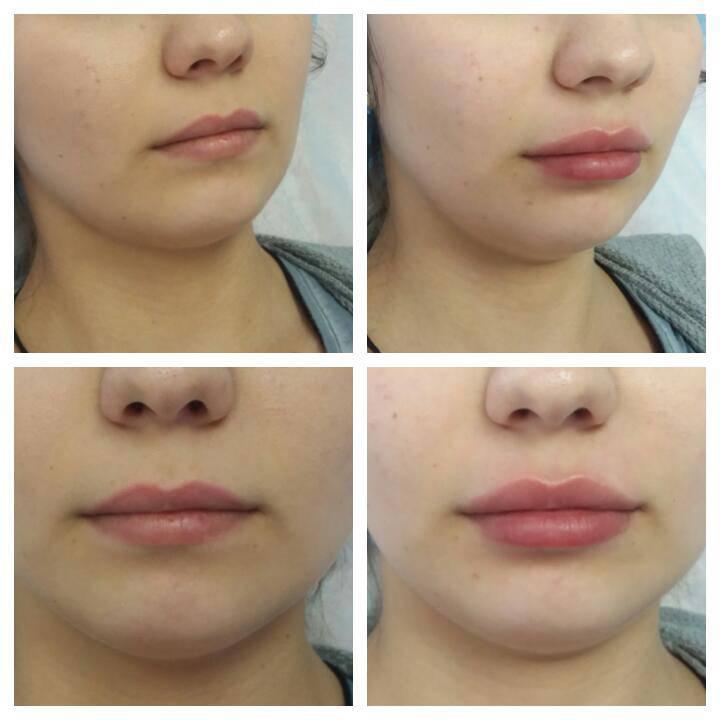 Увеличение губ филлерами гиалуроновой кислоты: сравнение с хейлопластикой (булхорном)