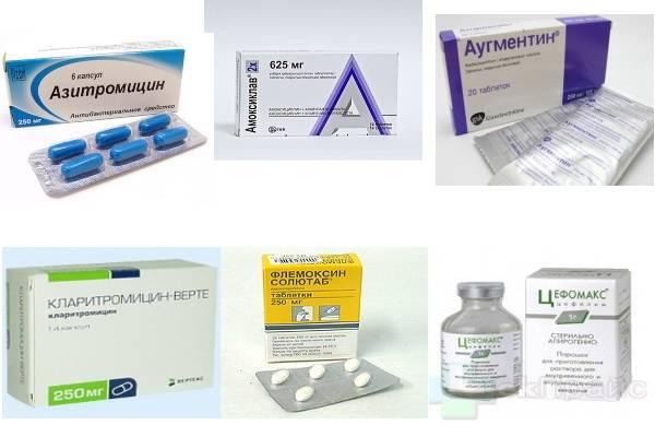 Может ли быть пневмония без кашля: как проявляется скрытая болезнь, клиническая картина, диагностические исследования, способы лечения, профилактические мероприятия