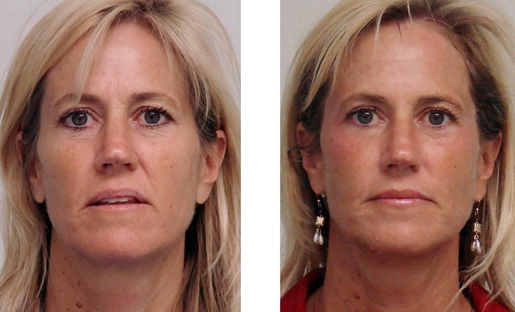 Восстановление красоты локонов — что такое плазмолифтинг, безопасен ли он, как происходит лечение волос?