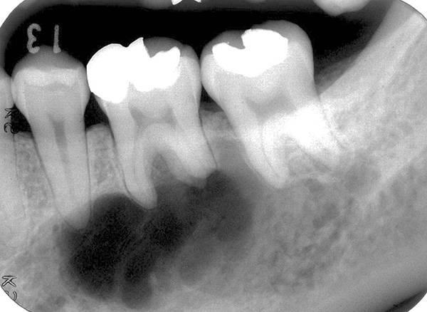 Киста зубов – что это, симптомы, причины, виды, методы лечение