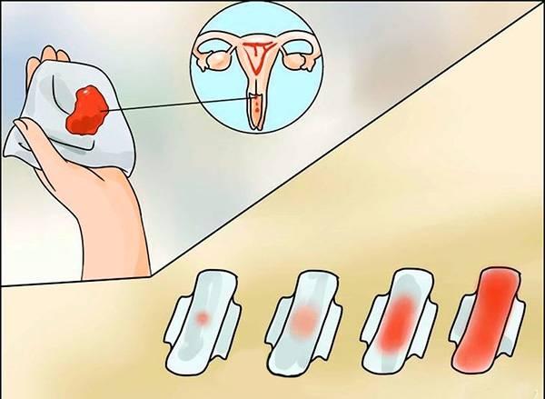 Как отличить месячные от кровотечения и стоит ли обращаться к врачу?